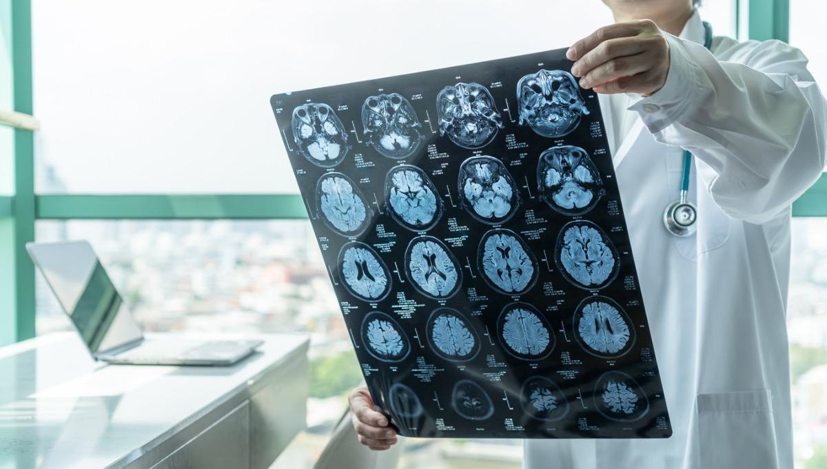 Understanding-Seizures